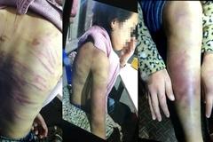 Bé gái 12 tuổi bị bạo hành, xâm hại tình dục: Khởi tố mẹ và người tình