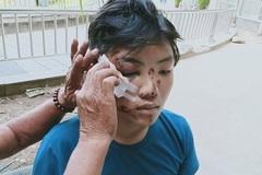 Con trai hiếu thảo gặp tai nạn, cha đơn thân không lo nổi tiền viện phí