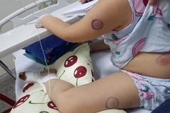 Bé 5 tuổi ở Quảng Bình nhiễm khuẩn Whitmore sau khi bị gà mổ