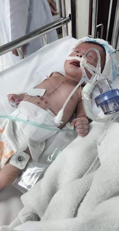 Sự sống mong manh của bé trai 5 tháng tuổi mắc bệnh tim