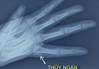 Nhiệt kế cắm vào tay, bé gái Thái Bình bị nhiễm độc thủy ngân