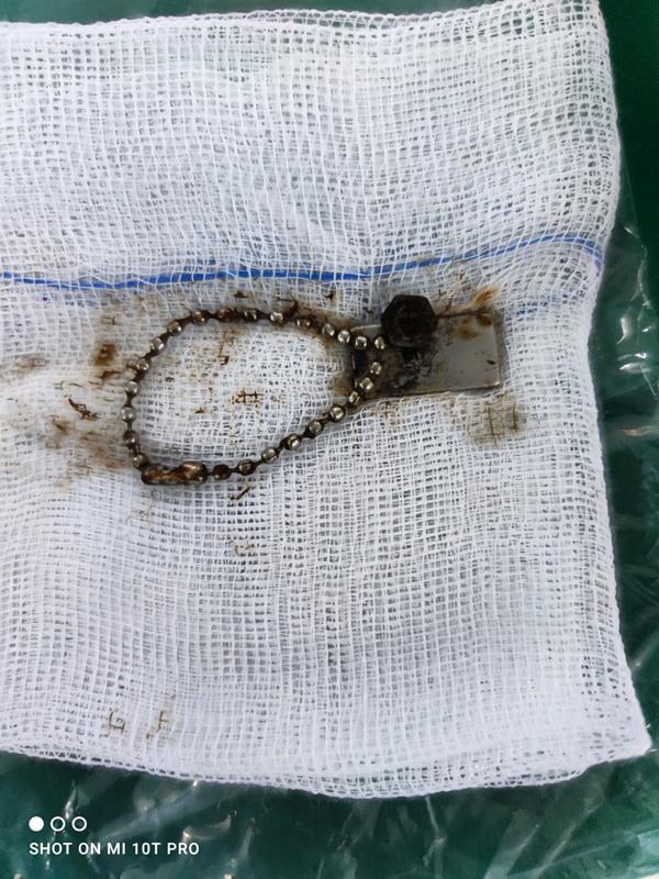 Bé trai 6 tuổi thủng ruột do nuốt nam châm và chuỗi hạt kim loại
