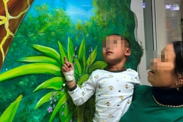 Bé 4 tuổi bị chó cắn hở sọ não