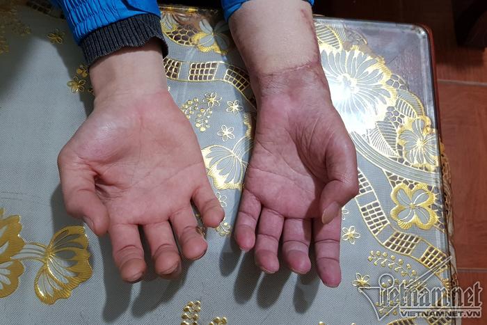 Cuộc sống mới của chàng trai đầu tiên ghép tay người khác tại Việt Nam