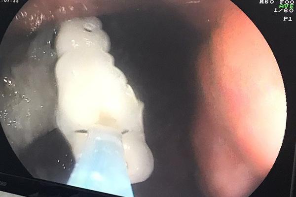 Răng giả rơi vào dạ dày, người phụ nữ uống thuốc xổ phải cấp cứu
