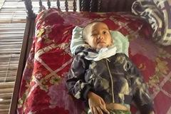 Bé trai 5 tuổi bị vỡ sọ não, tính mạng nguy kịch
