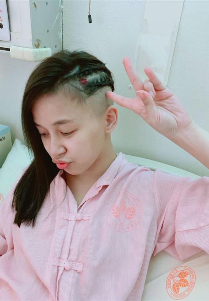 Diễn viên Trần Tiểu Lôi phát hiện bị u não