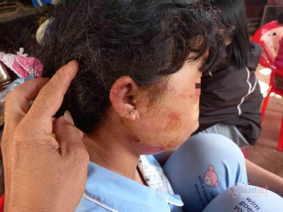 Lời kể của nữ sinh lớp 6 bị đánh bất tỉnh, kéo lê 60m trong lô cao su
