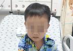 Bé trai 4 tuổi bị rắn cắn khi đi thả diều