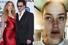 Johnny Depp bị tung bằng chứng 12 lần đánh Amber Heard