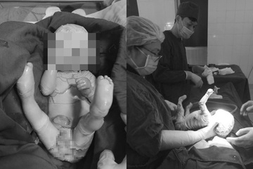 Thiếu nữ Yên Bái 15 tuổi sinh con trai đóng vảy như da cá