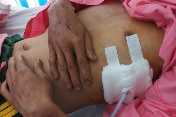 Một dân phòng ở Bình Dương bị hành hung phải nhập viện cấp cứu