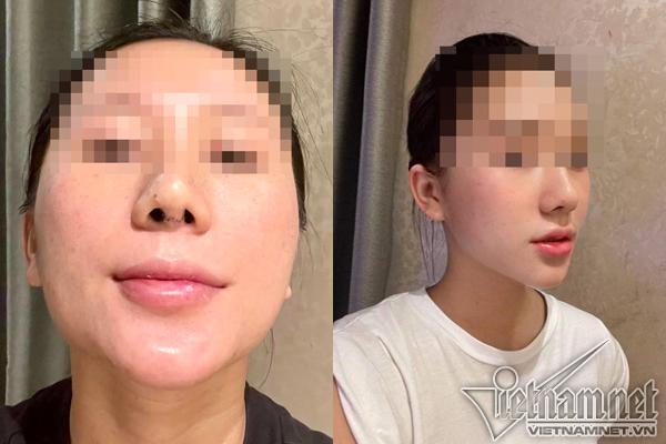 Bác sĩ cắt sụn sườn nâng mũi vẹo cho cô gái Hà Nội