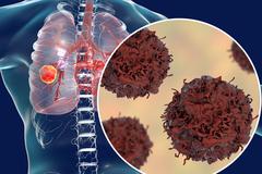 Lý do 75% ung thư phổi tại Việt Nam không phát hiện được sớm