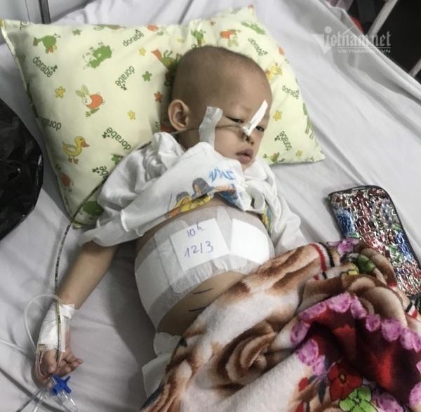 Vừa cắt bỏ khối u, bé gái yếu ớt cần tiếp sức để được 'về đích'