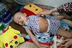 """Vừa cắt bỏ khối u, bé gái yếu ớt cần tiếp sức để được """"về đích"""""""