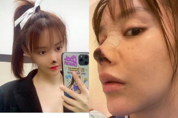 Nữ diễn viên hoại tử mũi sau khi đi làm đẹp