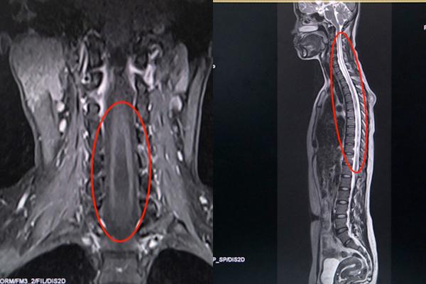 Tưởng đau cổ vai gáy, đi khám phát hiện căn bệnh có thể gây liệt tay