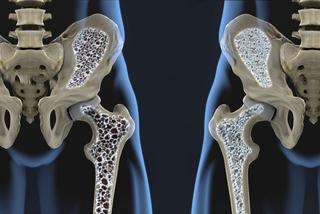 Căn bệnh âm thầm triệu người mắc khiến xương người phụ nữ vỡ vụn