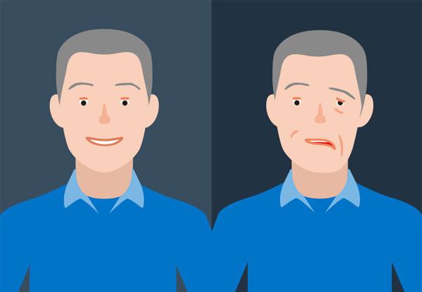 Cách bạn có thể giảm nguy cơ đột quỵ