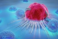 """Một gia đình 4 người lần lượt mắc bệnh ung thư: """"Thủ phạm"""" chính là loại đồ vật chứa chất độc gấp 10 lần kali xyanua có ngay trong bếp"""