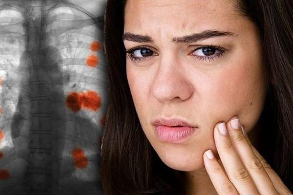 Biểu hiện cảnh báo ung thư phổi lộ trên khuôn mặt
