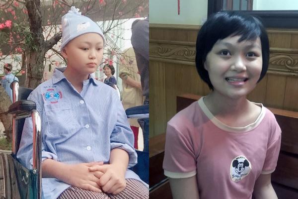 Cô bé 14 tuổi bị ung thư mù 2 mắt khao khát thấy ánh sáng