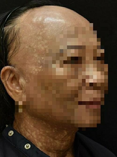 Bệnh lạ khiến người phụ nữ rụng tóc, hói nửa đầu