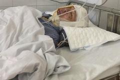 Cơn đau thấu trời của người phụ nữ bị bỏng đến lồi xương sọ