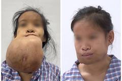 Cằm cô gái Nghệ An mọc khối u to như quả dừa