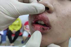 Nữ sinh rỉ máu môi vì son mua trên mạng