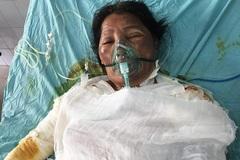 Chồng bị thần kinh, vợ bỏng nặng nguy kịch cầu cứu