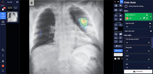 AI trợ lý bác sĩ - Ứng dụng trí tuệ thông minh bảo vệ thành trì chống dịch Covid-19