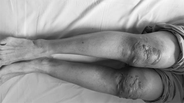 Nhiễm trùng vì chữa bệnh khớp theo lời đồn