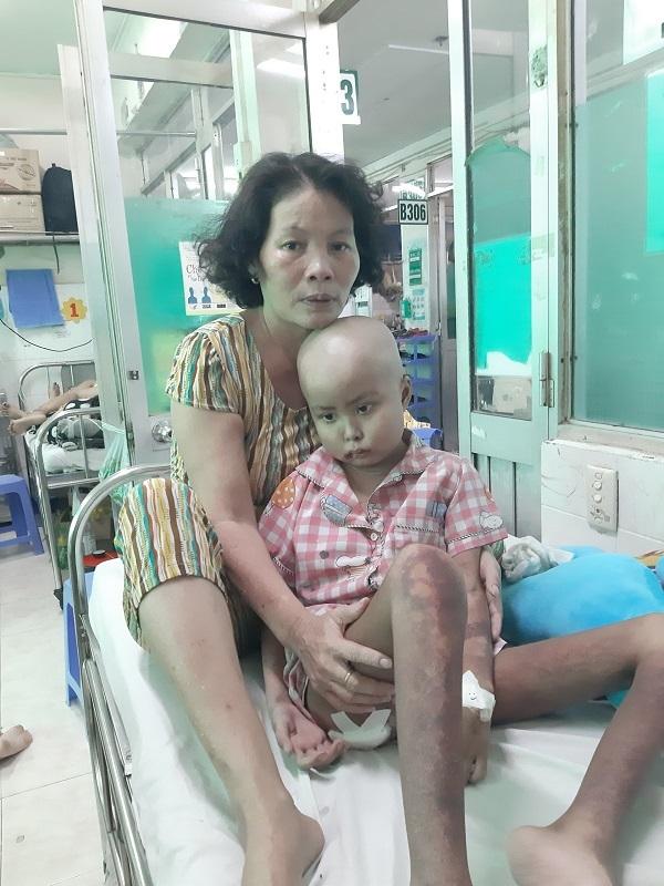 Khát khao được sống của bé gái lở loét, đau đớn vì ung thư tái phát