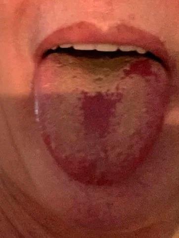 Triệu chứng mới ở lưỡi của bệnh nhân nhiễm Covid-19