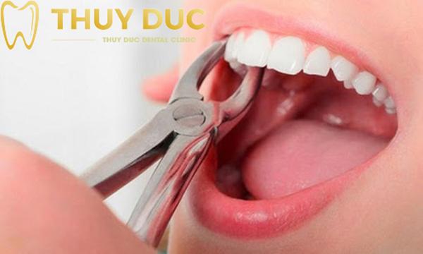 Phương pháp niềng răng không đau tại nha khoa Thúy Đức