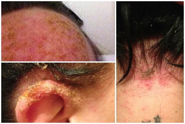 Nhuộm tóc thường xuyên: tổn hại khó lường cả ngoài và trong cơ thể