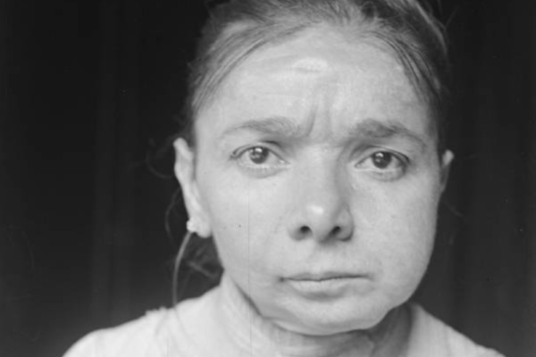 Những cô gái 'hàm phossy'–di chứng khủng khiếp từ phốt pho trắng