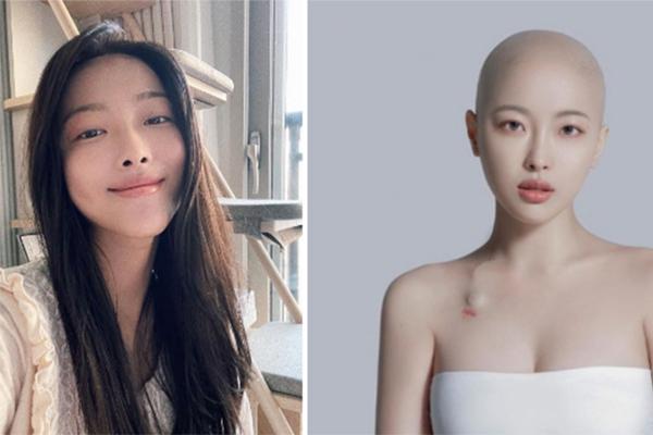 Nữ VJ Hàn qua đời ở tuổi 30
