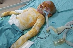 Bị bỏng cồn nặng, bé gái 5 tuổi cần giúp đỡ khẩn cấp