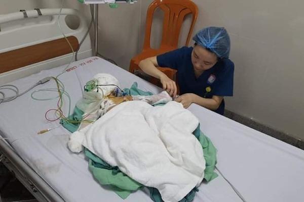 Bé Hoàng Minh Đức bị bỏng nặng đã được phẫu thuật lần 2