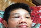 Cán bộ bị đánh gãy mũi vì mâu thuẫn tại chốt kiểm dịch