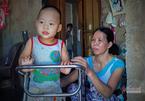Bị vôi não hoá, bé trai 3 tuổi chật vật lớn lên trong câm lặng