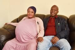 Ca sinh 10 đầu tiên trên thế giới