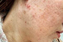 Cách chăm sóc làn da hư tổn vì corticoid