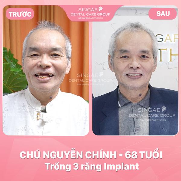 5 lý do nên trồng răng Implant tại nha khoa Singae