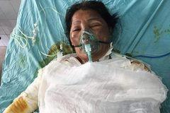 Cô Nguyễn Thị Cảnh bị bỏng lửa đã được xuất viện về nhà