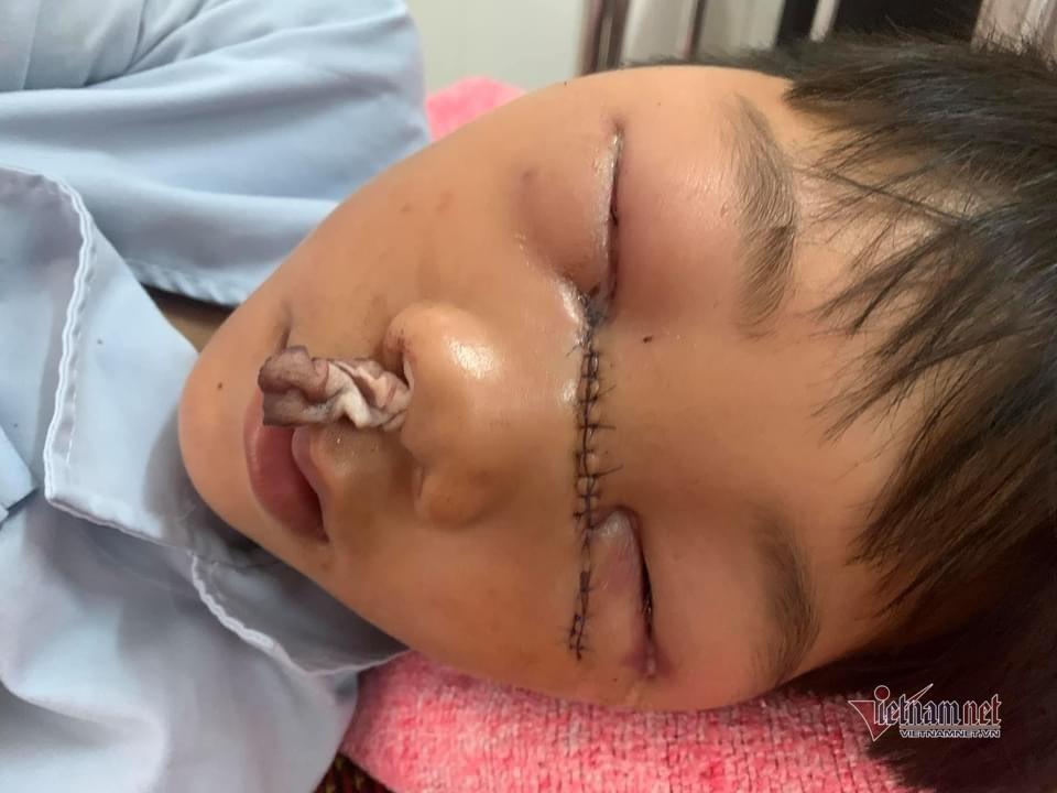 Sinh ra không có bố, bé trai khốn khổ bị mẹ tâm thần chém đứt sống mũi