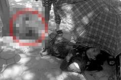 Người phụ nữ gãy gập cổ chân vì áo chống nắng cuốn vào bánh xe Grab